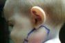 Šai mazulītei ļoti pietūka vaigs un ārsti nesaprata, kas notiek, līdz parādījās ŠIS!